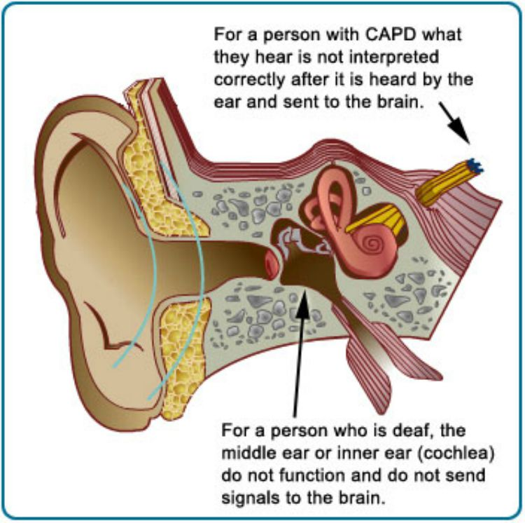 What is CAPD? My daughter's REAL diagnosis